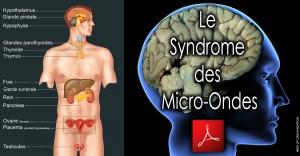 """Compilation: Êtes-vous atteint par le """"Syndrome des Micro-Ondes? """" par Paul-Raymond Doyon."""
